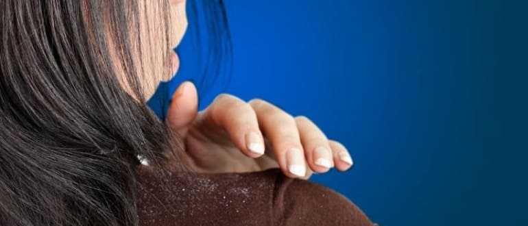 Эффективное лечение перхоти с помощью шампуня